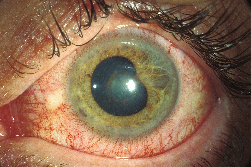 Adalimumab Effective in JIA-Associated Uveitis Unresponsive