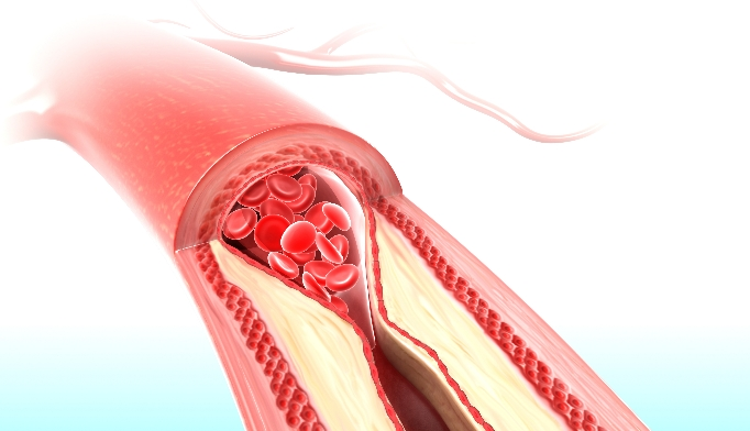 artery with plaque_TS_46186089