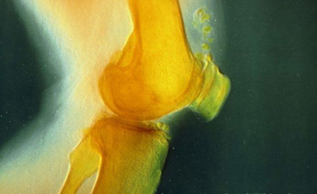 arthritic knee joint