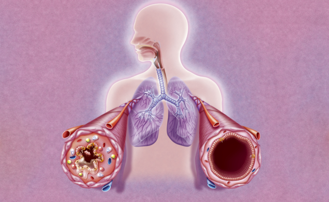 illustration of asthma attack brochial tubes
