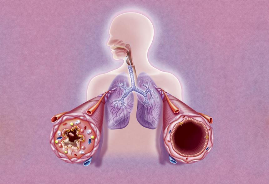 illustration of asthma attack brochial tubes
