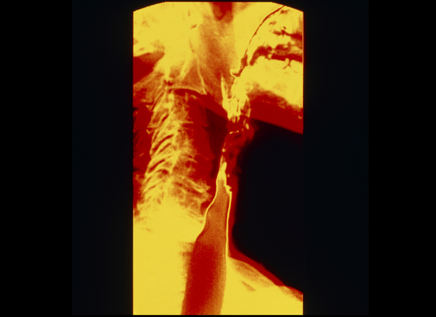 Radiograph of esophagus after barium swallow