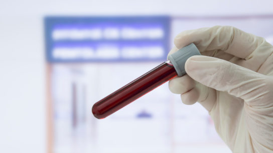 medical technician gloved hand holding blood sample in tube