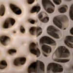 osteoporotic bone