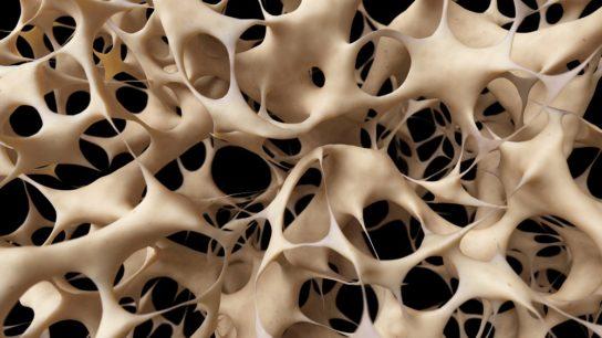 bones with osteoporosis