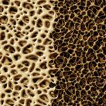 Bone With Osteoperosis