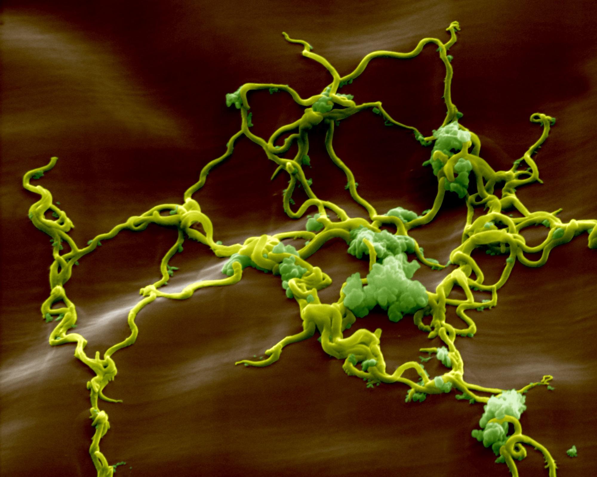 Diagnosing Lyme Disease in Children With Neuropsychiatric