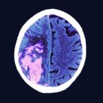 MRI of stroke in brain