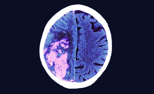 MRI of stroke in brain