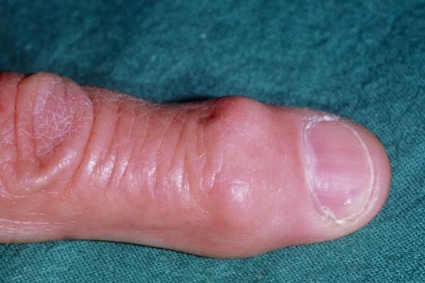 Gicht Fingergelenke