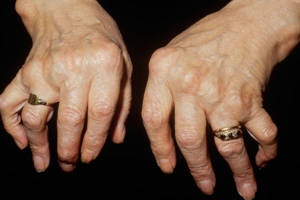 Arthritic hands showing symmetrical deformation of the joints that is consistent with rheumatoid arthritis.