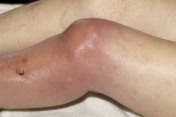 Also known as pyogenic arthritis or infective arthritis, this form of arthritis is caused by an infection. This photo shows the knee of an 88-year-old woman that has septic arthritis associated with methicillin-resistant Staphylococcus aureus. The infected joint becomes red, painful and swollen. Treatment includes painkillers and anti-inflammatory drugs, physiotherapy, and joint replacement surgery.