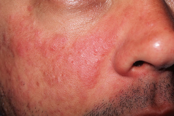 A butterfly-shaped rash (partially seen here) over the cheeks and bridge of the nose is characteristic feature noted in diagnostic criteria.