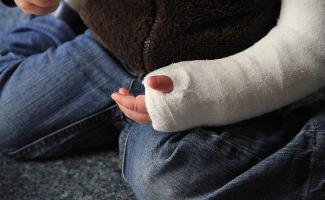 child's arm in a cast