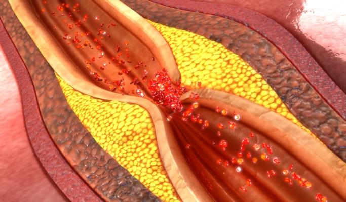 Coronary Heart Disease Plaque Mortality