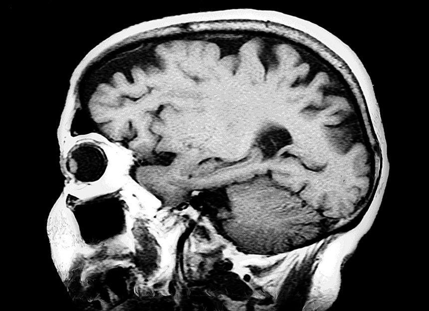 Neuroimaging detects abnormalities in 35% to 90% of patients with APS and may be useful for assessing a patient's risk for neurologic disease.3 Most neurologic characteristics observed in the brain of patients with APS are ischemic changes, including multifocal cerebral infarctions, white matter lesions, and cerebral atrophy.14 An estimated 22% to 46% of patients with APS have infarcts, 17% to 45% (with primary APS) have white-matter lesions, and 12% to 36% have cerebral atrophy on MRI.3 In a retrospective analysis of 16 Chinese people with APS and neurologic manifestations, infarcts were detected primarily in the basal ganglia and cerebral cortex.14 Neuroimaging also showed occlusions or stenosis affecting the anterior, middle, and posterior cerebral arteries and their respective branches. More advanced imaging techniques like diffusion tensor imaging may be able to detect brain abnormalities like white matter lesions earlier than MRI in patients with APS.3 Image Credit: ISM/SOVEREIGN