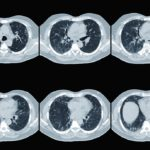 CT scan, lung
