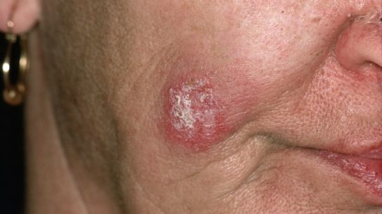 Chronic (or discoid) cutaneous lupus erythematosus of the cheek.