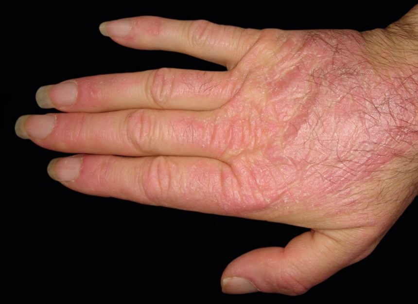 dermatomyositis on patients hand