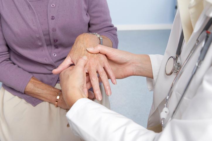 doctor checking woman's hand for rheumatoid arthritis