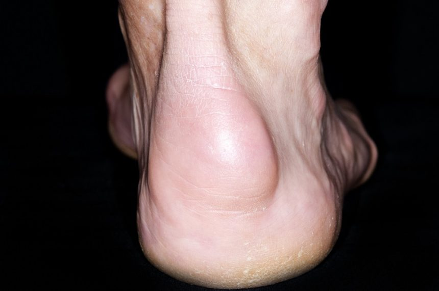 Enthesitis of the heel