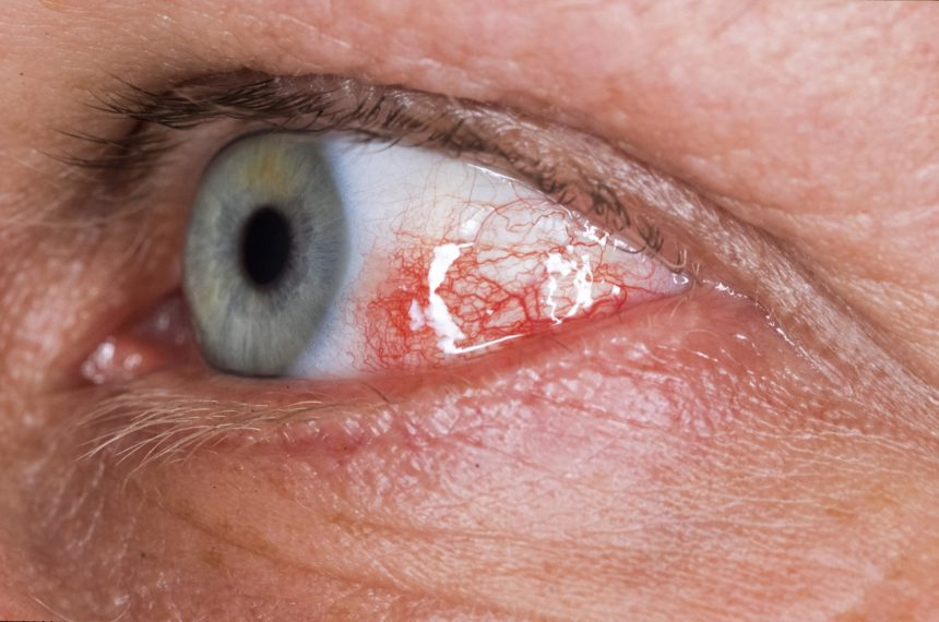 The reported prevalence of ophthalmologic involvement in APS varies widely from 15% to 88%.13 Several ocular syndromes have been documented in patients with APS, of which amaurosis fugax is among the most common.3,6 Amaurosis fugax, a painless condition that causes temporary vision loss in one or both eyes, affects approximately 5% of patients with APS and is associated with cerebral ischemia.3 Optic neuropathy (ON) is less common, affecting 1% of patients with APS.3 It can be anterior or posterior (retrobulbar) and nonarteritic or arteritic. Anterior nonarteritic ischemic ON (NAION) is a thrombotic condition, whereas retrobulbar ON has thrombotic and inflammatory mechanisms.3 Both NAION and retrobulbar ON produce acute visual decline and unilateral color vision deficiency, but NAION typically causes papillary edema with linear hemorrhage.3 Mild ocular disorders, including conjunctivitis, telangiectasia, keratitis, dry eye, uveitis, and scleritis are also observed in patients with APS.6 Image Credit: Hercules Robinson