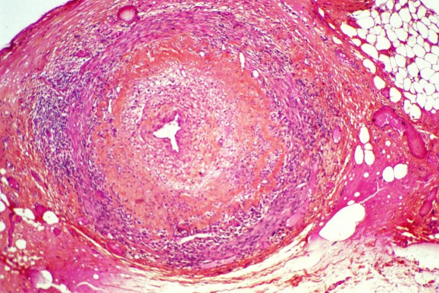 Photomicrograph of the temporal artery, histological section, showing temporal arteritis