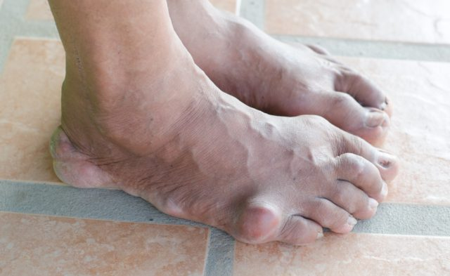 Feet of an individual with gout