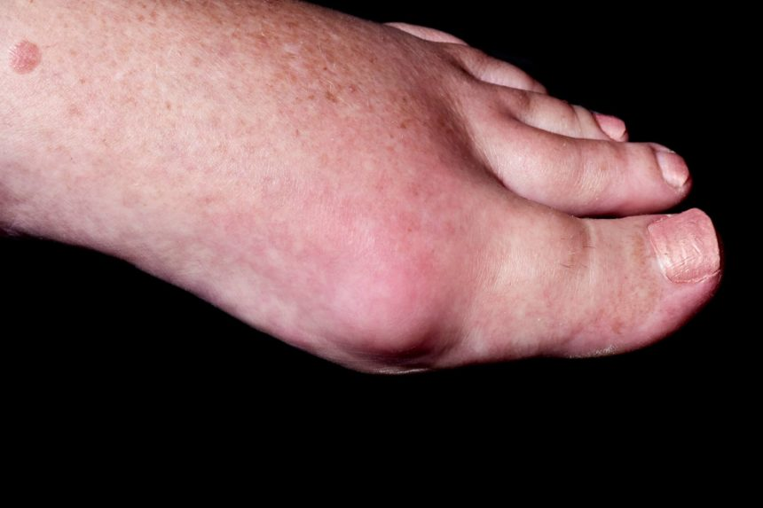 gout of foot