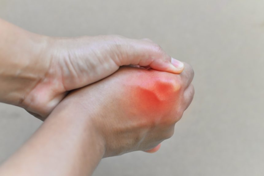 gout on hand