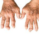 hand RA