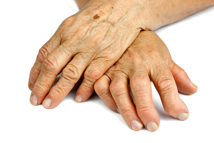 deformed woman's hands from rheumatoid arthritis