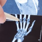 hand xray of finger joints