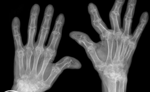 Hand xrays showing advanced rheumatoid arthritis