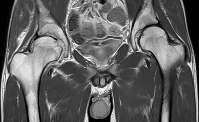 spondyloarthritis of right hip