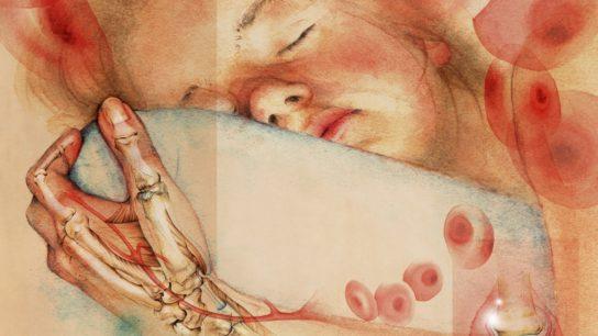 Sleeping girl with inflammatory arthritis