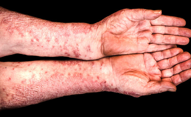 inflectra-approved-RA-psoriasis-crohns-CA0416