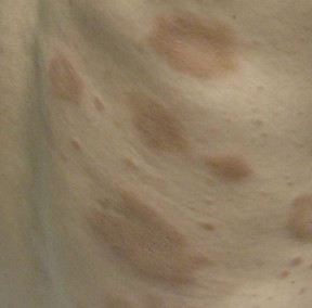 The term interstitial granulomatous dermatitis describes a form of granulomatous dermatitis in which annular plaques or rope-like cords appear on the lateral trunk and skin folds in patients with RA. The lesions tend to be symmetrically distributed on the trunk and tend to be largely asymptomatic. The histopathologic findings are notable for areas of degenerated collagen with palisading granulomas composed of histiocytes.