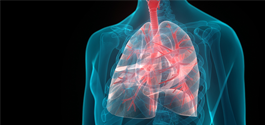 interstitial lung disease_265x125