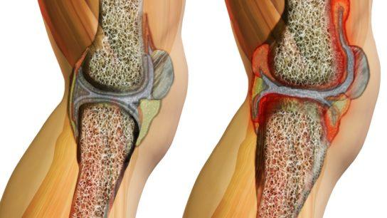 Illustration of systemic juvenile idiopathic arthritis