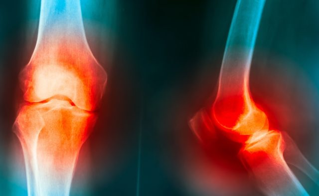 Radiograph of a knee with osteoarthritis