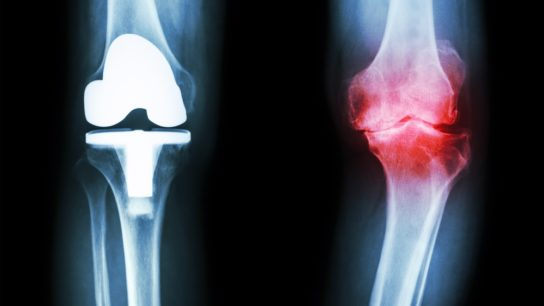 knee OA with knee replacement