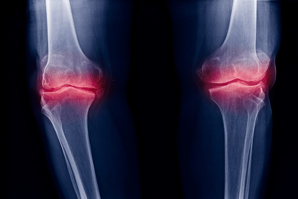 Engineers at MIT designed a material that can penetrate and deliver drugs directly to the cartilage in patients with osteoarthritis. Investigators are optimistic that the injectable material, made from nanoscale particles, may potentially heal damaged tissue and improve treatment options for the more than 20 million Americans living with the condition.1