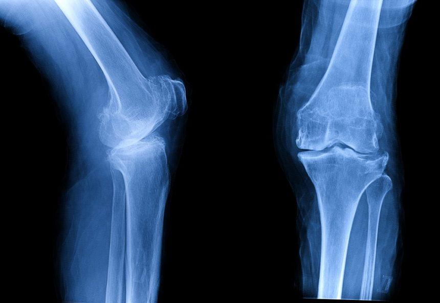 knee osteoarthritis xray
