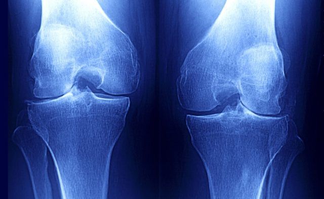 x-ray of knee