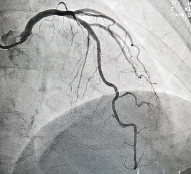 left anterior descending artery