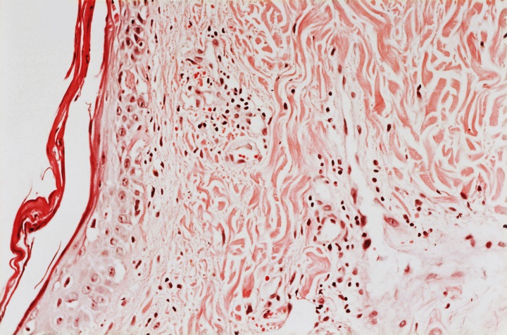 Light micrograph of skin lesions in dermatomyositis