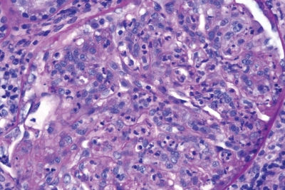 Biopsies May Predict Renal Outcomes in Patients with Lupus Nephritis