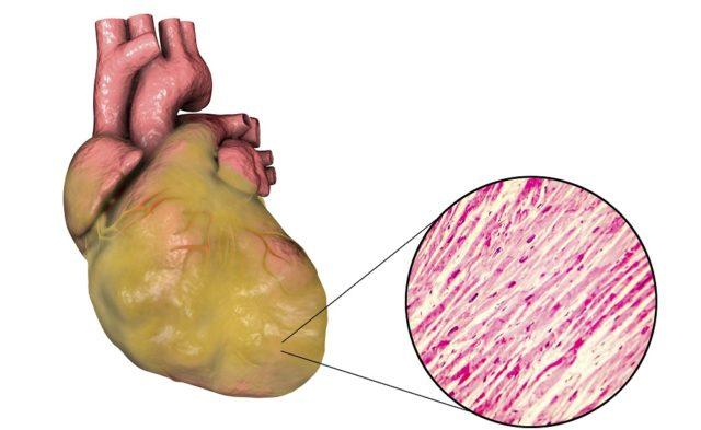 Left ventricular hypertrophy, heart failure