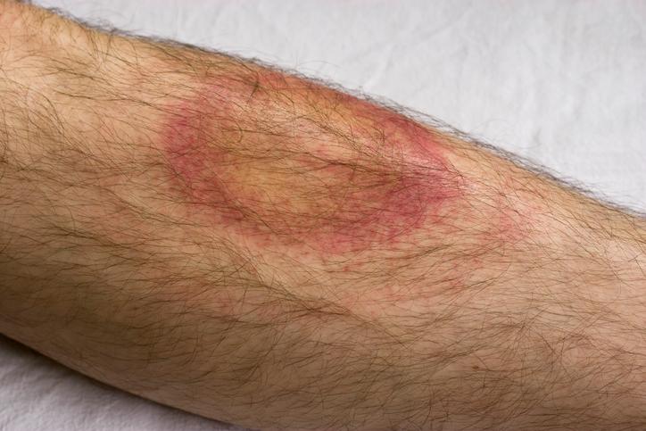 Lyme disease ring on body